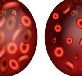 أهمية إجراء تحليل الفوسفور فى الدم