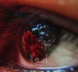 أسباب احمرار العين ونصائح للوقاية منها