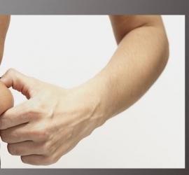 علماء: السمنة تقلل كمية المضادات في جسم الإنسان