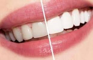 أفضل الطرق للتعامل مع ألم الأسنان