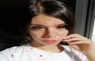 فتاة تفقد بصرها بسبب وشم العين