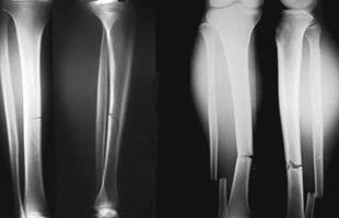 4 علامات تدل على كسر العظام