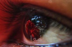 6 أسباب وراء احمرار العين