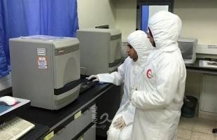 صحة غزة تستلم جهاز الفحص المخبري PCR