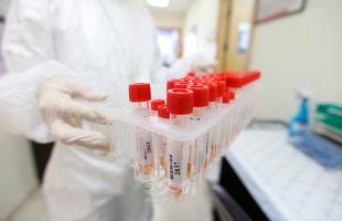 """""""كنا على خطأ"""".. """"كورونا"""" يتلاعب بجهاز المناعة ويحير العلماء"""