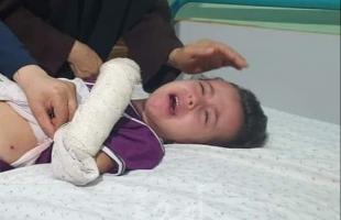 إصابات وأضرار بالمنازل نتيجة قصف طائرات الاحتلال أهداف في قطاع غزة - فيديو وصور