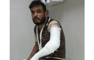 """أمن حماس يعتدي على أفراد من عائلة القصاص في خانيونس بطريقة """"وحشية"""""""