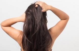 3 حلول ووصفات طبيعية للتخلص من قشرة الرأس