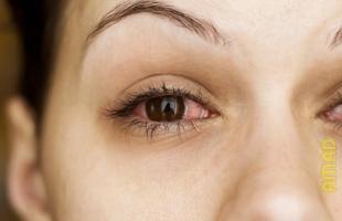 علامات تنذر بمشكلة خطيرة فى العين