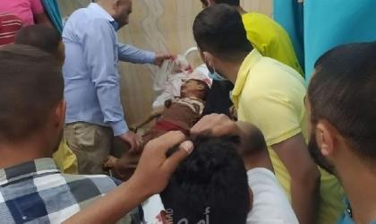 محدث.. الصحة: استشهاد (83) مواطناً بينهم 17 طفلا و6 سيدات وإصابة 487 في قطاع غزة