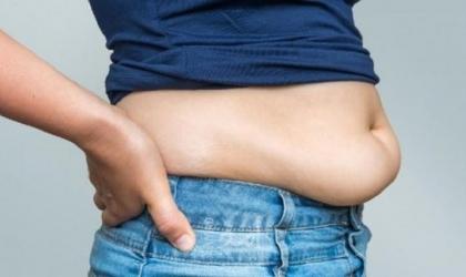 (5) أسباب تمنع التخلص من دهون البطن