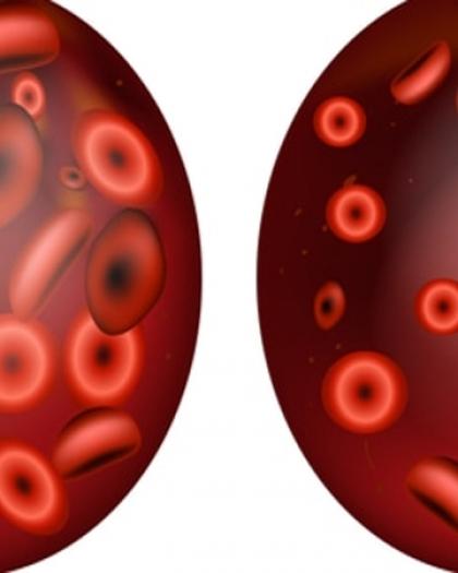علامات انخفاض مستوى الأكسجين فى الدم؟