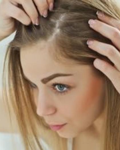 كل ما تريد معرفته عن التهابات سعفة الرأس