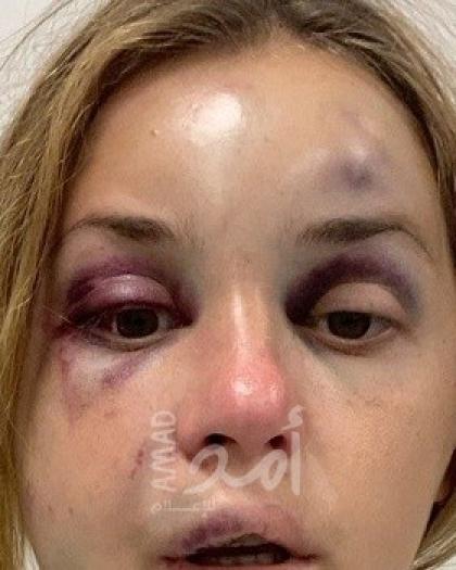 مذيعة تلفزيون أوكرانية تتعرض للضرب ومحاولة اغتصاب أمام ابنها